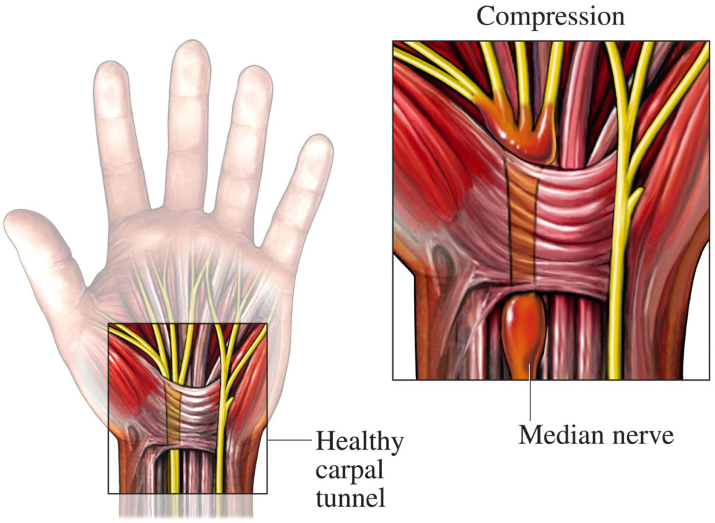 Anatomy | Carpal Tunnel Syndrome | Hand Surgery | Dubai | UAE | Dr. Jose Manuel Rojo-Manaute (image from: http://www.kleisertherapy.com/carpal-tunnel-syndrome/)